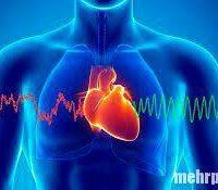 عوامل موثر در ایست قلبی